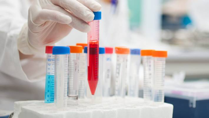 Blood Test To Verify Alzheimer's Disease In Progress